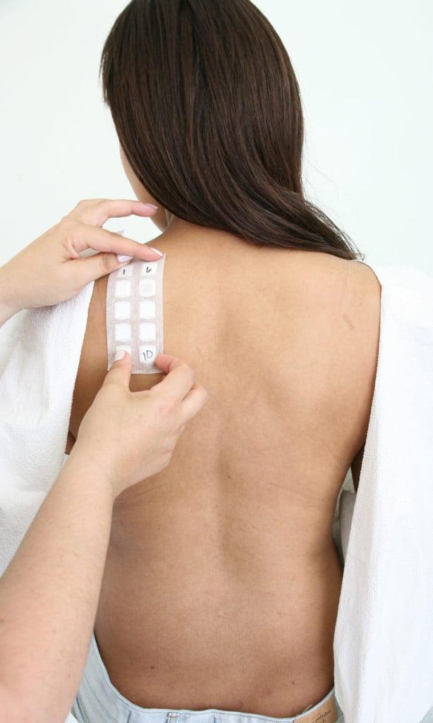 per essere sicuri davvero dell'allergia al nickel o per sapere se per caso siano coinvolti altri allergeni è necessario fare il Patch Test