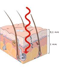 I raggi UVA penetrano in profondità nella pelle e causano invecchiamento cutaneo, macchie, allergie e - nei casi più gravi - tumori