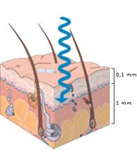 I raggi UVB non penetrano in profondità nella pelle, ma sono la principale causa di scottature