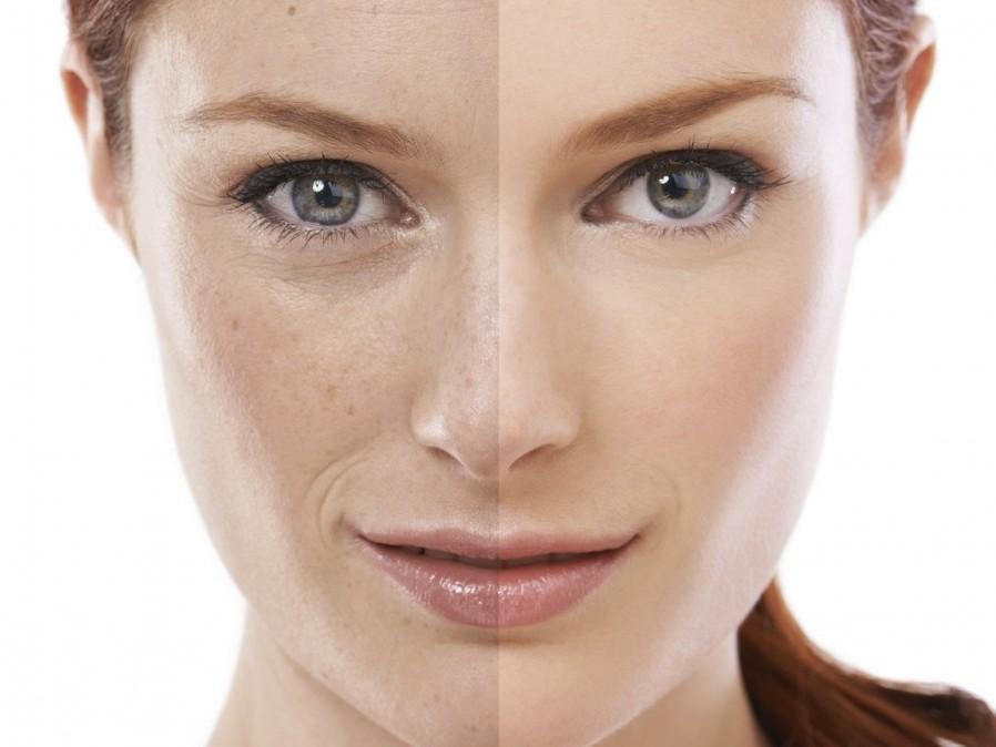 Segui la nostra guida ai migliori prodotti per ridare lucentezza e vitalità alla pelle del viso - crediti foto Garnier
