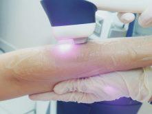 Trattamento cosmetico laser
