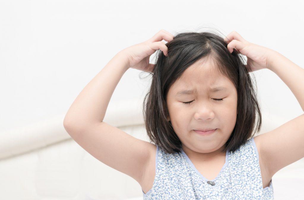 Pidocchi nei bambini: come eliminarli?