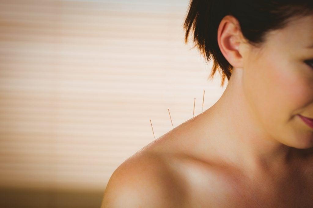 Benefici e controindicazioni dell'agopuntura cervicale.