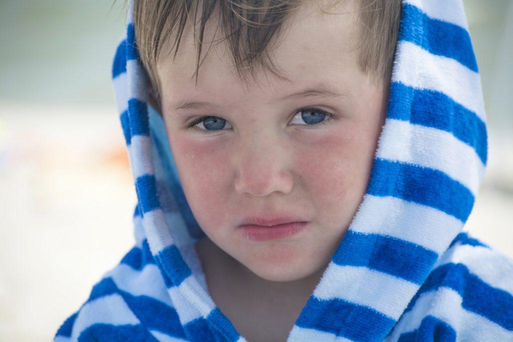 Dermatite atopica: come prevenirla