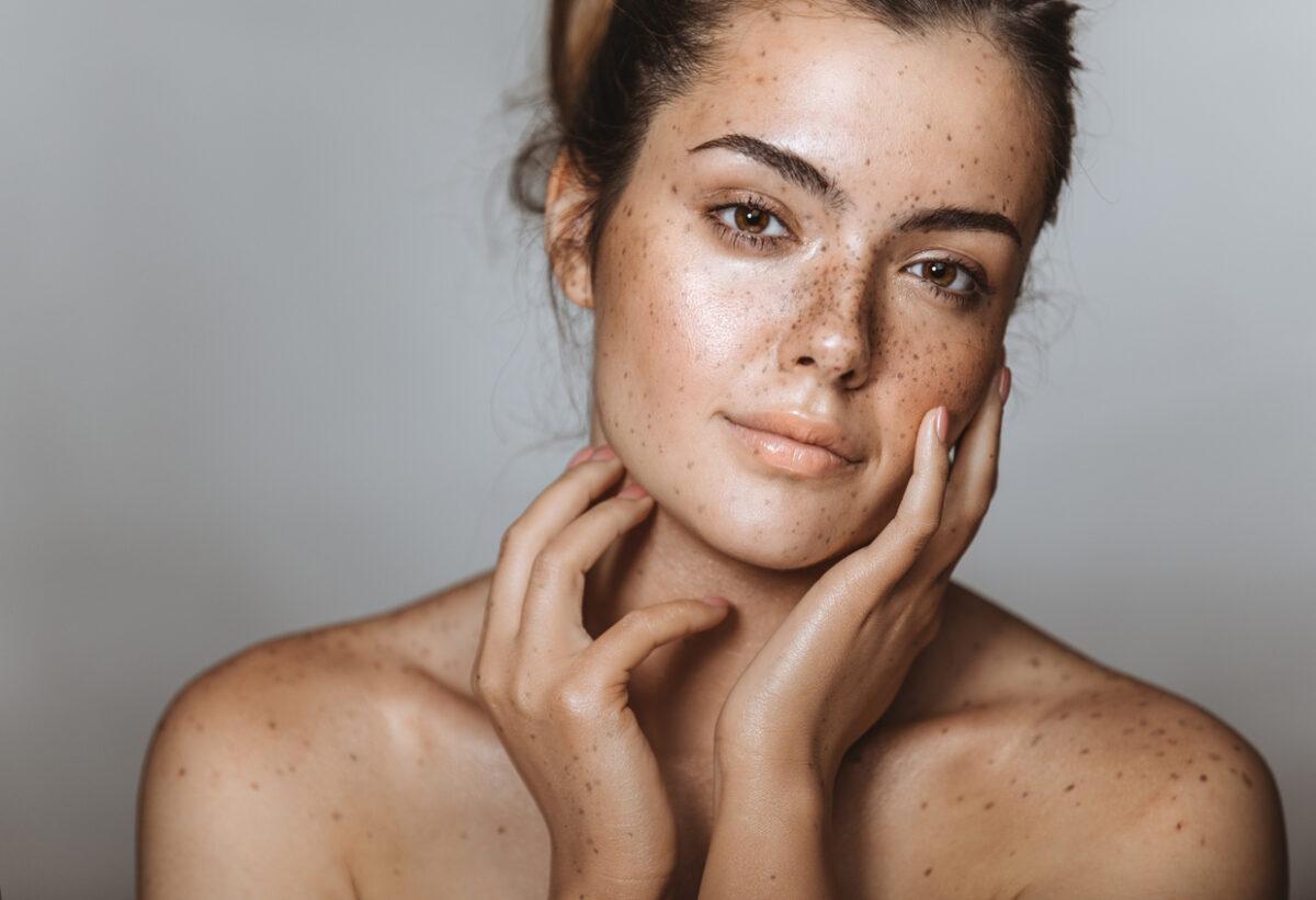 Acido ialuronico per le rughe al viso pro e contro
